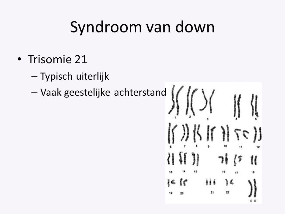 Syndroom van down Trisomie 21 Typisch uiterlijk