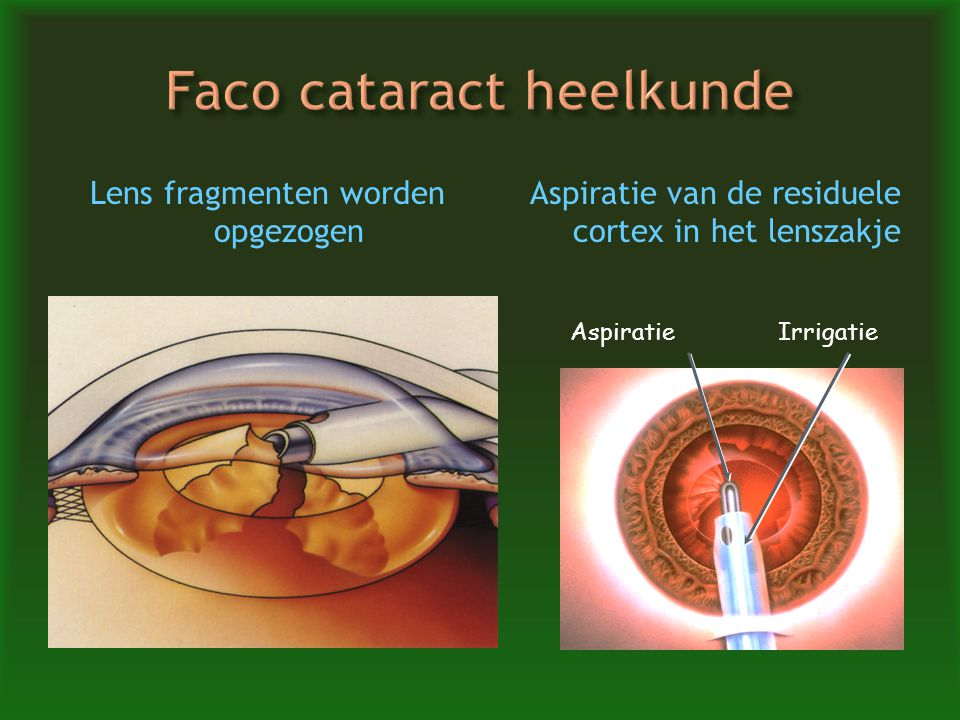 Faco cataract heelkunde