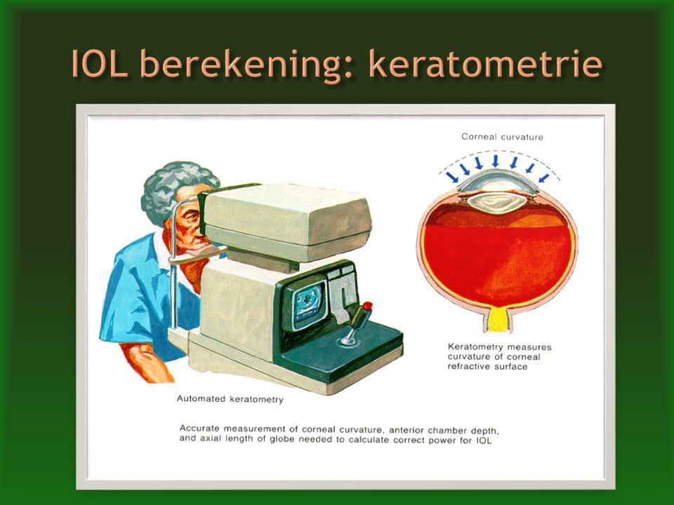 IOL berekening: keratometrie