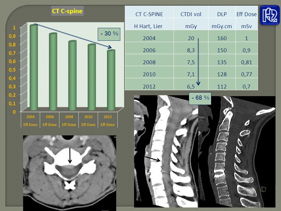 CT C-SPINE CTDI vol. DLP. Eff Dose. H Hart, Lier mGy. mGy.cm. mSv. 2004. 20. 160. 1. 2006.