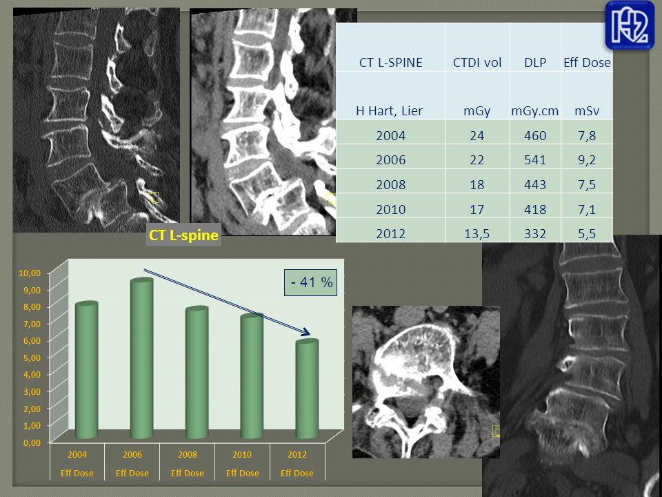 CT L-SPINE CTDI vol. DLP. Eff Dose. H Hart, Lier mGy. mGy.cm. mSv. 2004. 24. 460. 7,8. 2006.