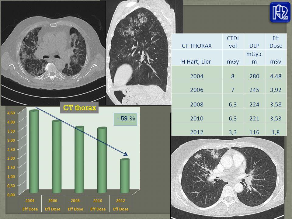 CT thorax CT THORAX CTDI vol DLP Eff Dose H Hart, Lier mGy mGy.cm mSv