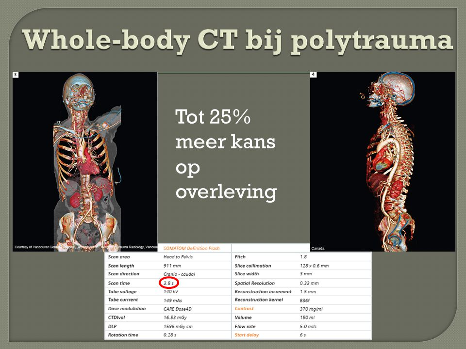 Whole-body CT bij polytrauma