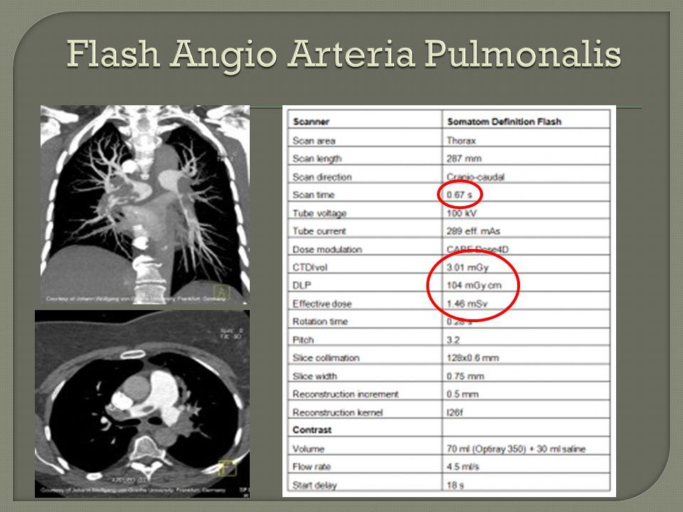 Flash Angio Arteria Pulmonalis