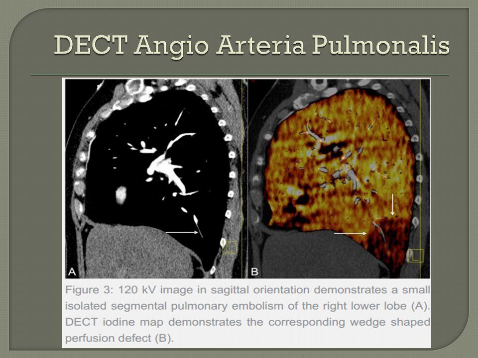 DECT Angio Arteria Pulmonalis