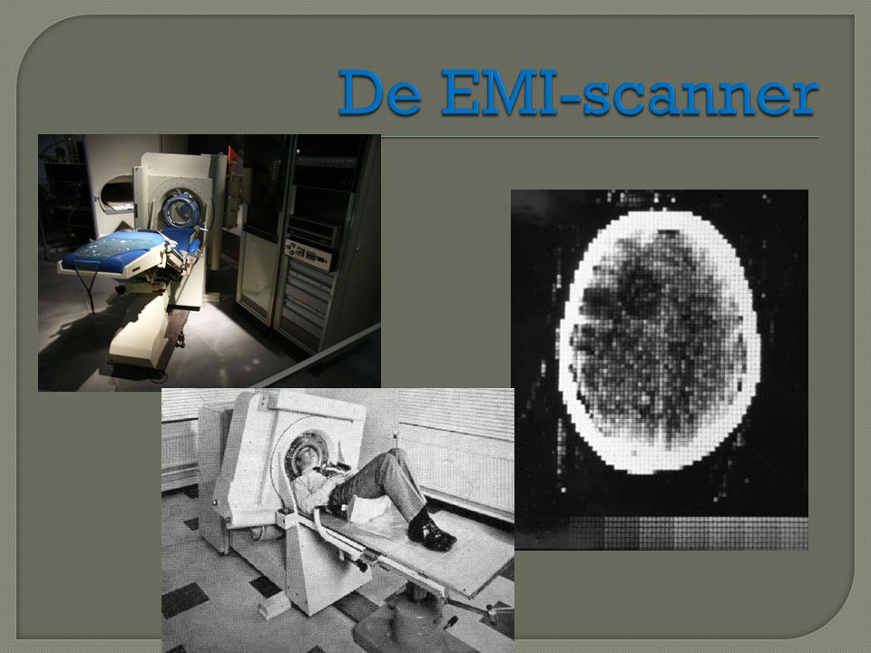 De EMI-scanner