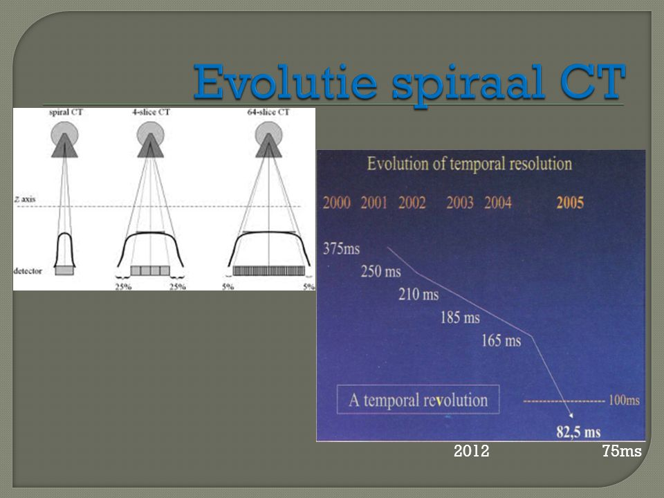 Evolutie spiraal CT 2012 75ms