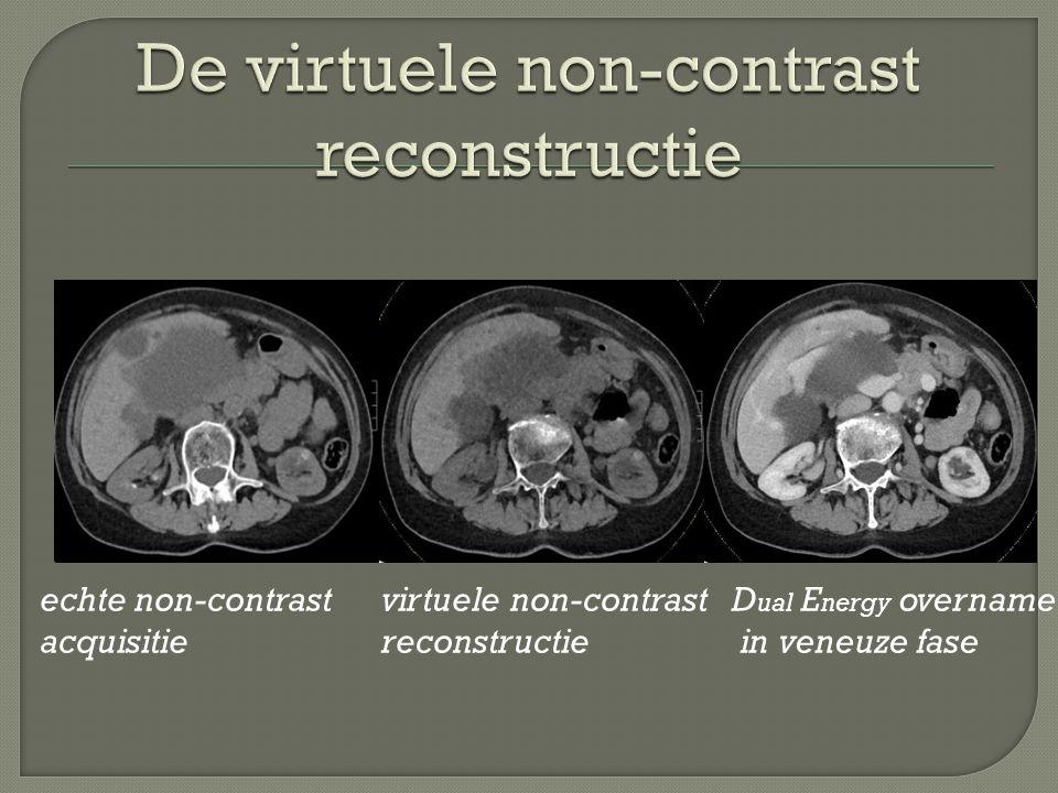 De virtuele non-contrast reconstructie