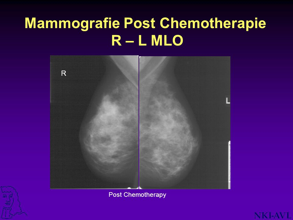 Mammografie Post Chemotherapie