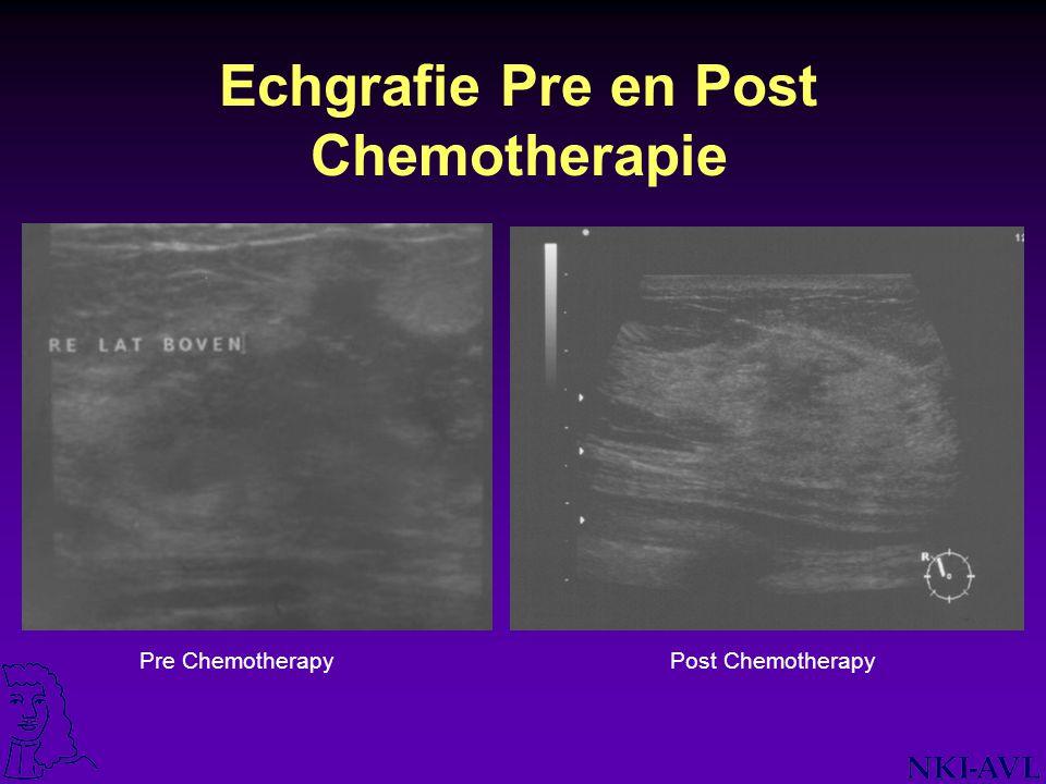 Echgrafie Pre en Post Chemotherapie