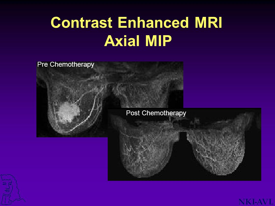 Contrast Enhanced MRI Axial MIP