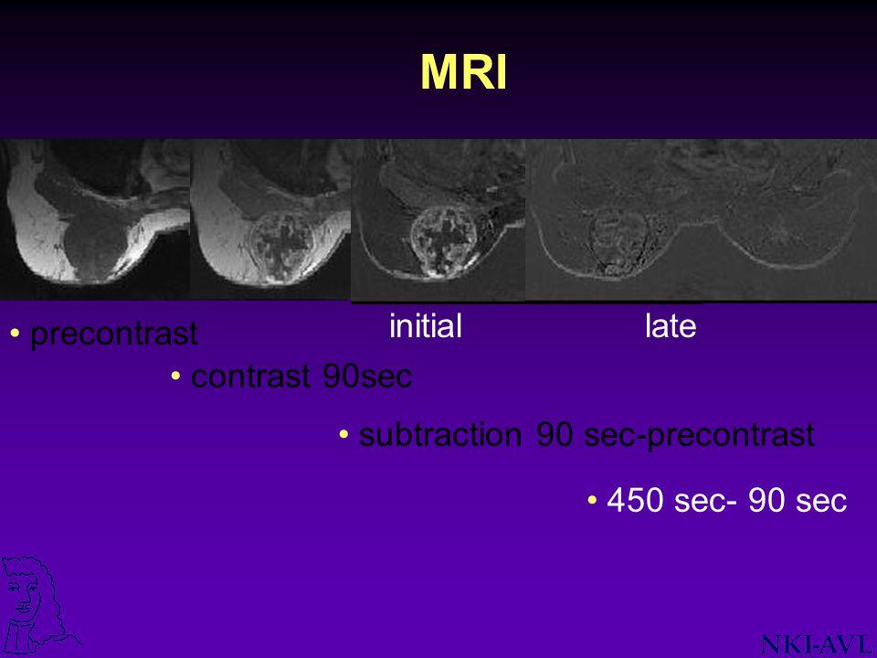 MRI initial late precontrast contrast 90sec