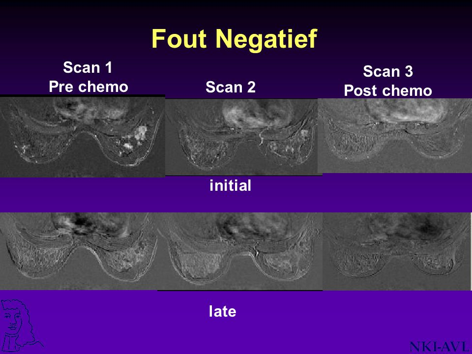 Fout Negatief Scan 1 Pre chemo Scan 3 Post chemo Scan 2 initial late