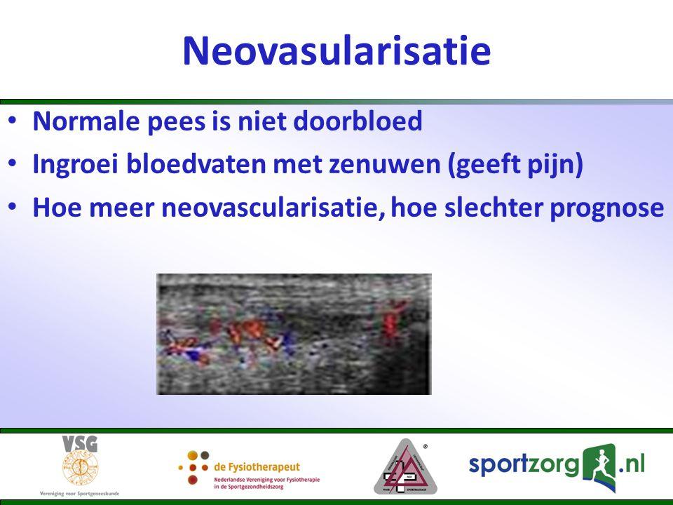 Neovasularisatie Normale pees is niet doorbloed