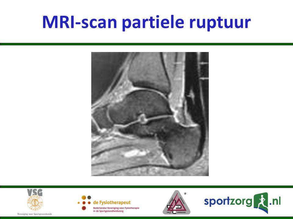 MRI-scan partiele ruptuur