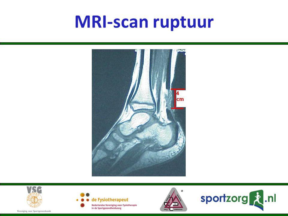 MRI-scan ruptuur
