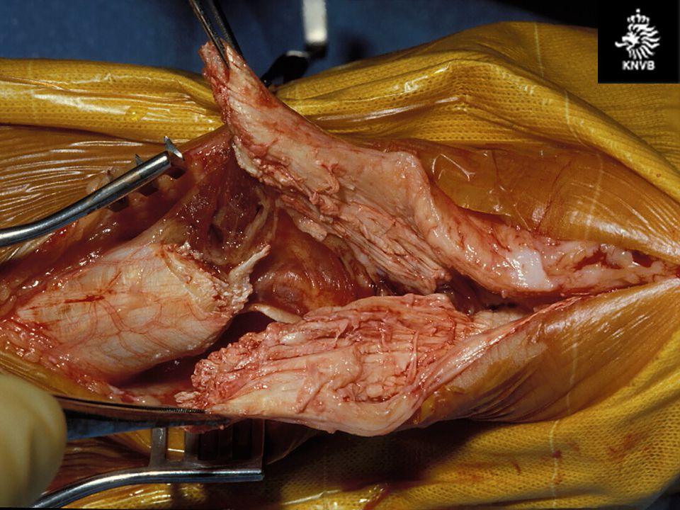 pijn achter in knieholte