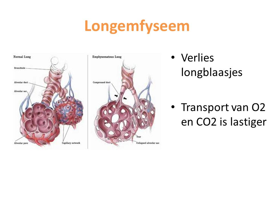 Longemfyseem Verlies longblaasjes Transport van O2 en CO2 is lastiger