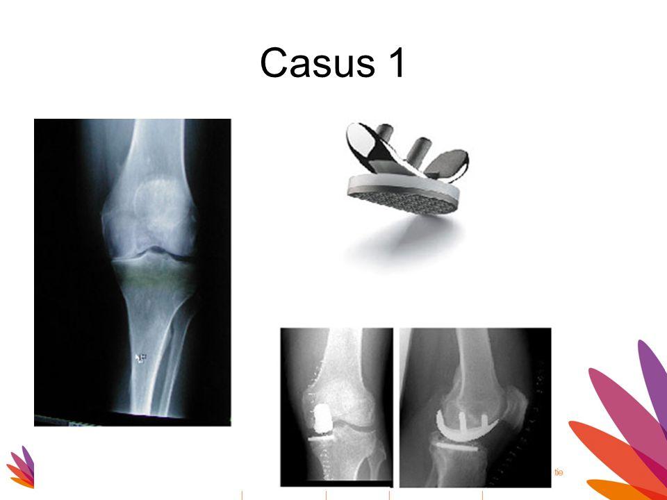 Casus 1 Indicatie hemiprothese: Meestal mediale arthosis Eenvoudiger
