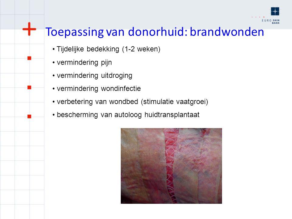 Toepassing van donorhuid: brandwonden