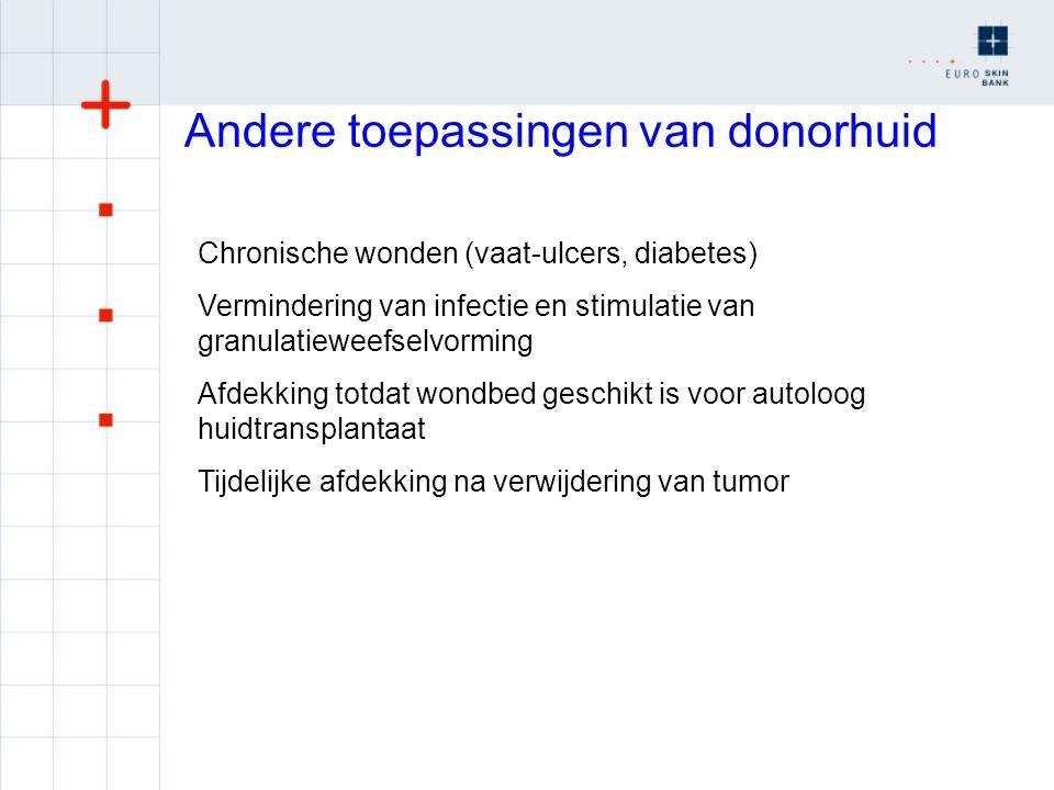 Andere toepassingen van donorhuid