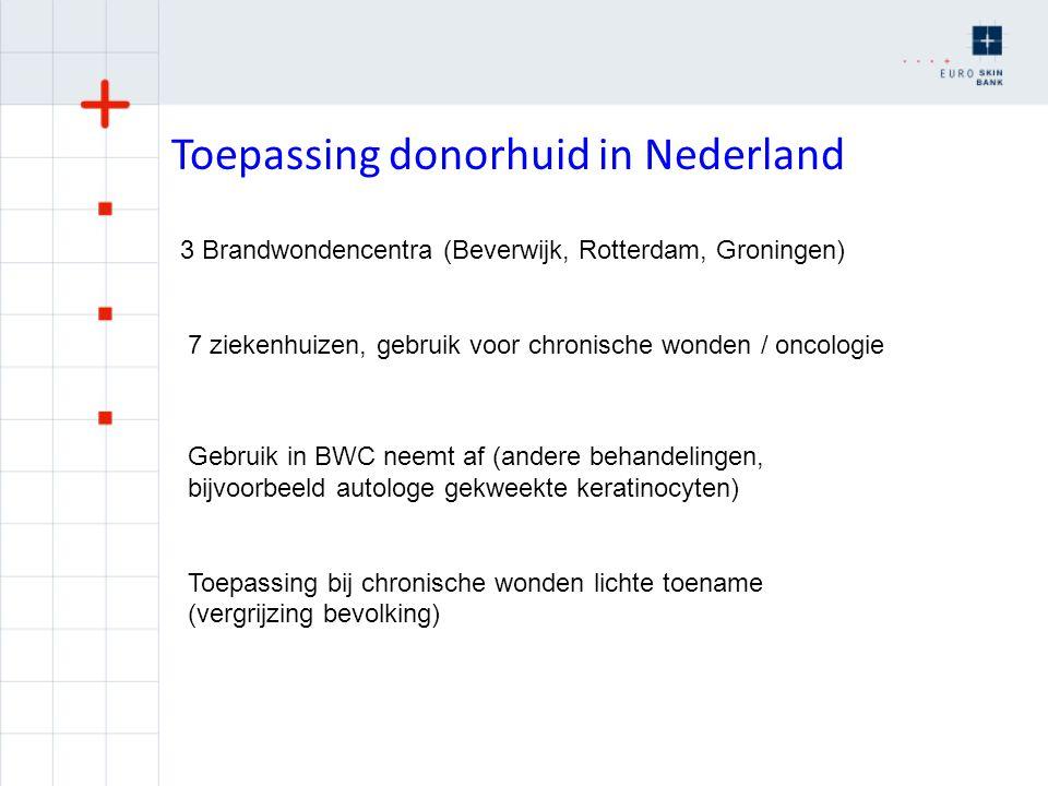 Toepassing donorhuid in Nederland