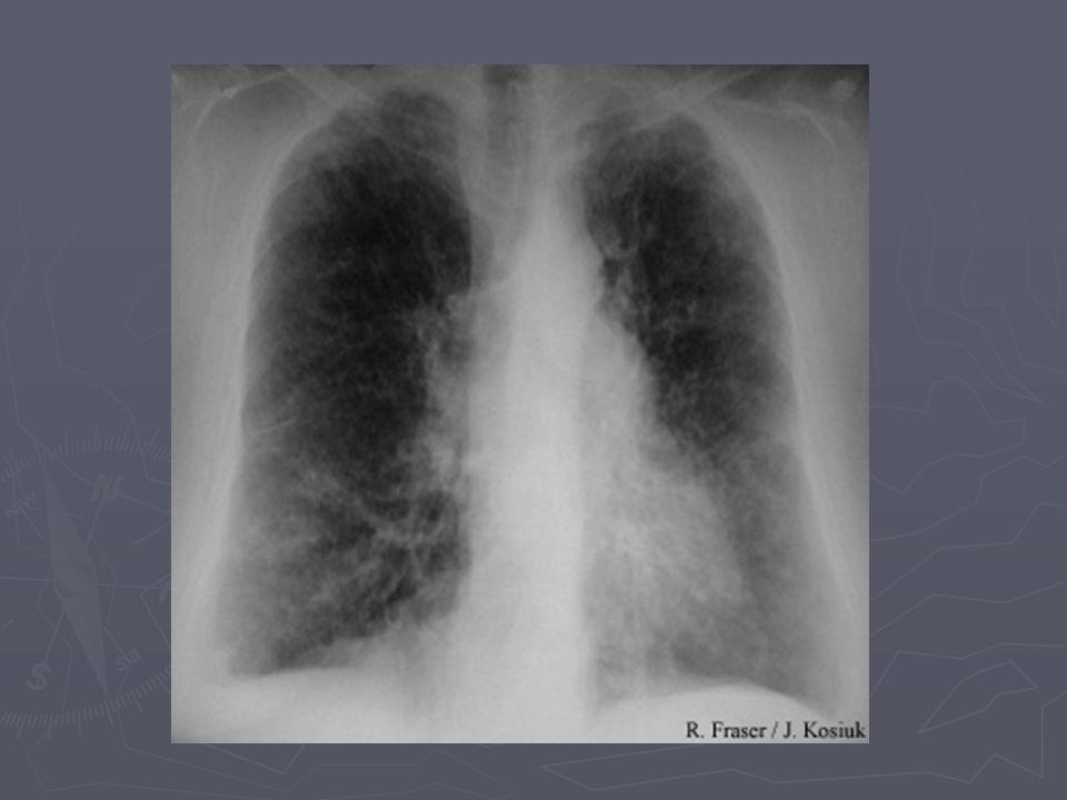 Xthorax = meestal al abnormaal bij pt en icm klinisch beeld mglk voldoende om diagnose te stellen