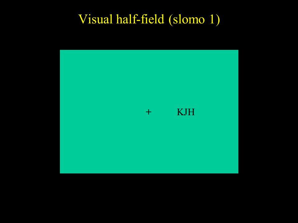 Visual half-field (slomo 1)