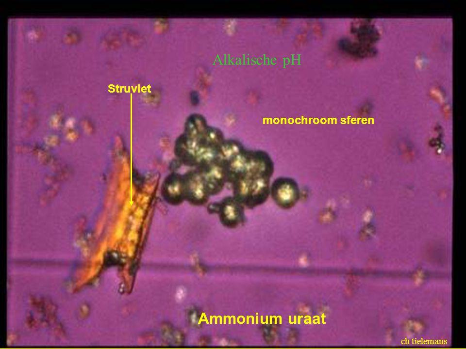 Alkalische pH Ammonium uraat Struviet monochroom sferen ch tielemans