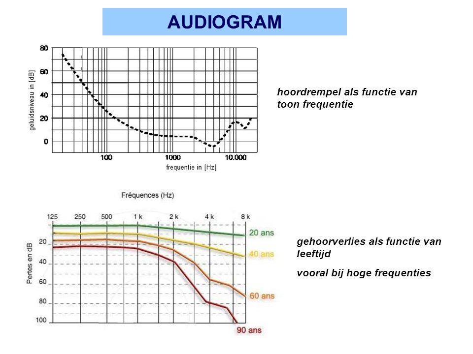 AUDIOGRAM hoordrempel als functie van toon frequentie