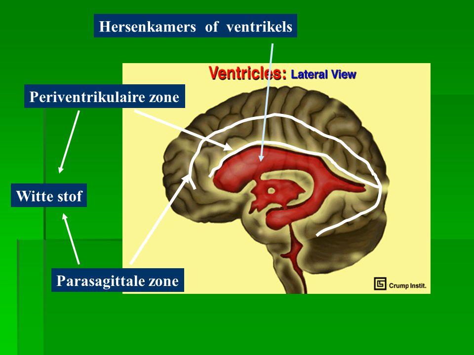 Hersenkamers of ventrikels