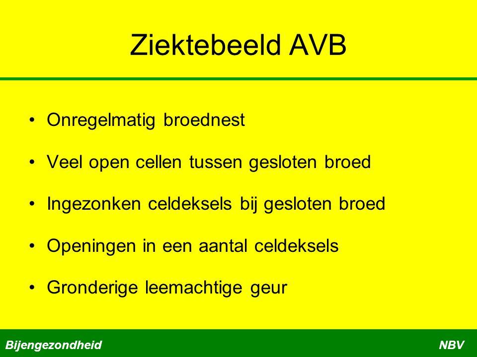 Ziektebeeld AVB Onregelmatig broednest