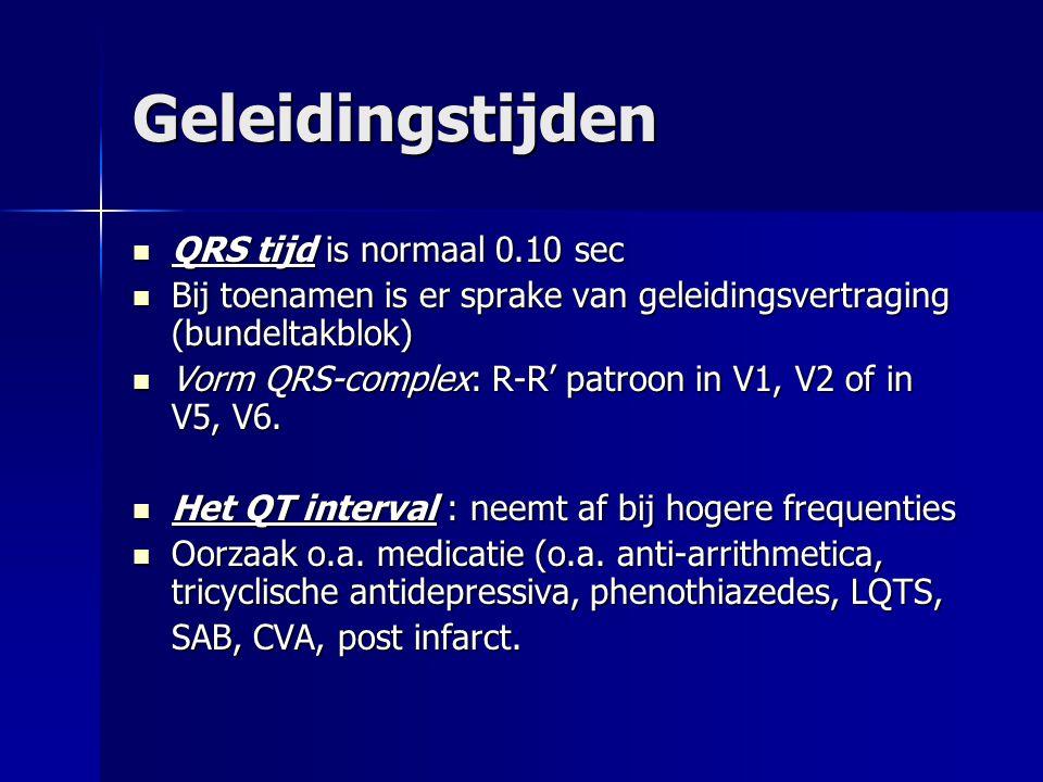 Geleidingstijden QRS tijd is normaal 0.10 sec