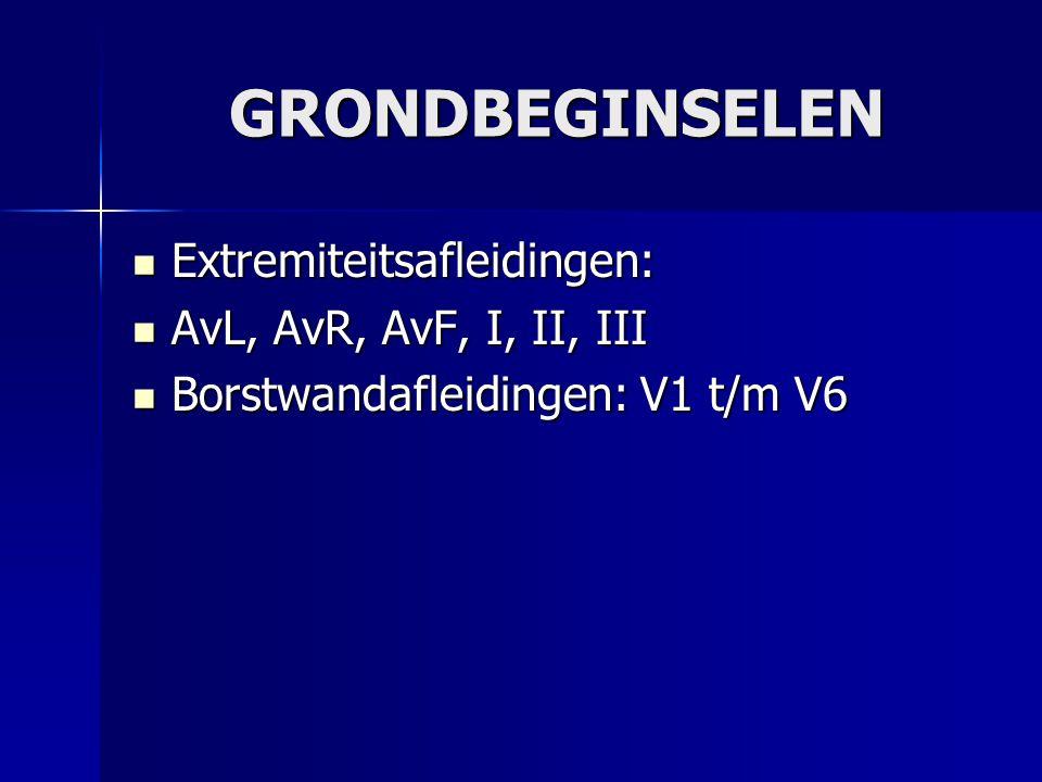 GRONDBEGINSELEN Extremiteitsafleidingen: AvL, AvR, AvF, I, II, III