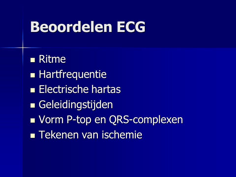 Beoordelen ECG Ritme Hartfrequentie Electrische hartas