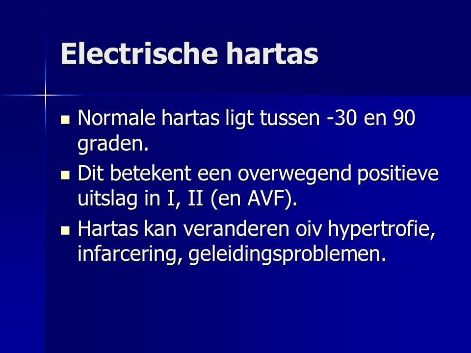 Electrische hartas Normale hartas ligt tussen -30 en 90 graden.