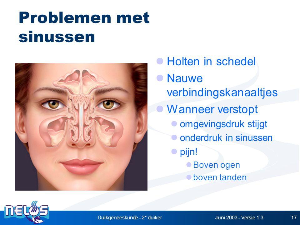 Problemen met sinussen