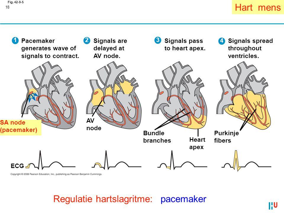 Regulatie hartslagritme: pacemaker