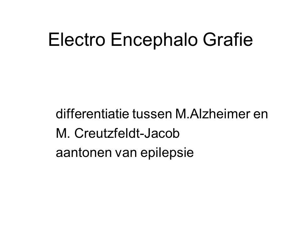 Electro Encephalo Grafie
