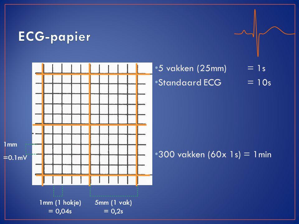 ECG-papier 5 vakken (25mm) = 1s Standaard ECG = 10s