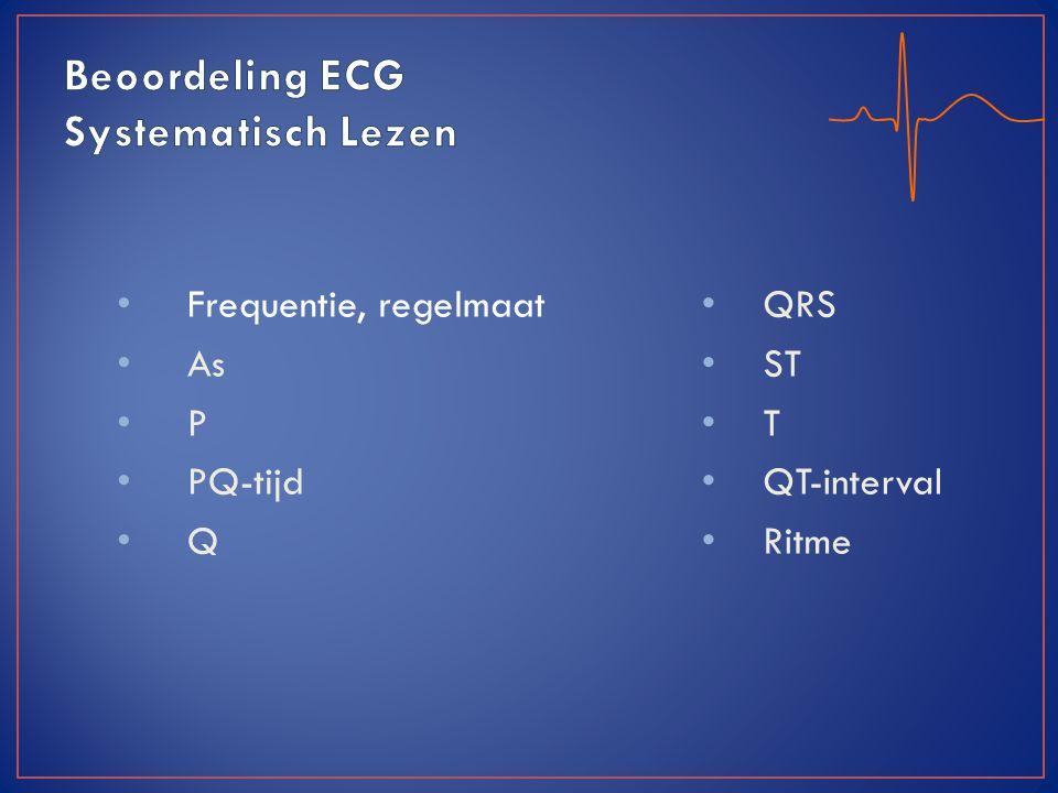 Beoordeling ECG Systematisch Lezen