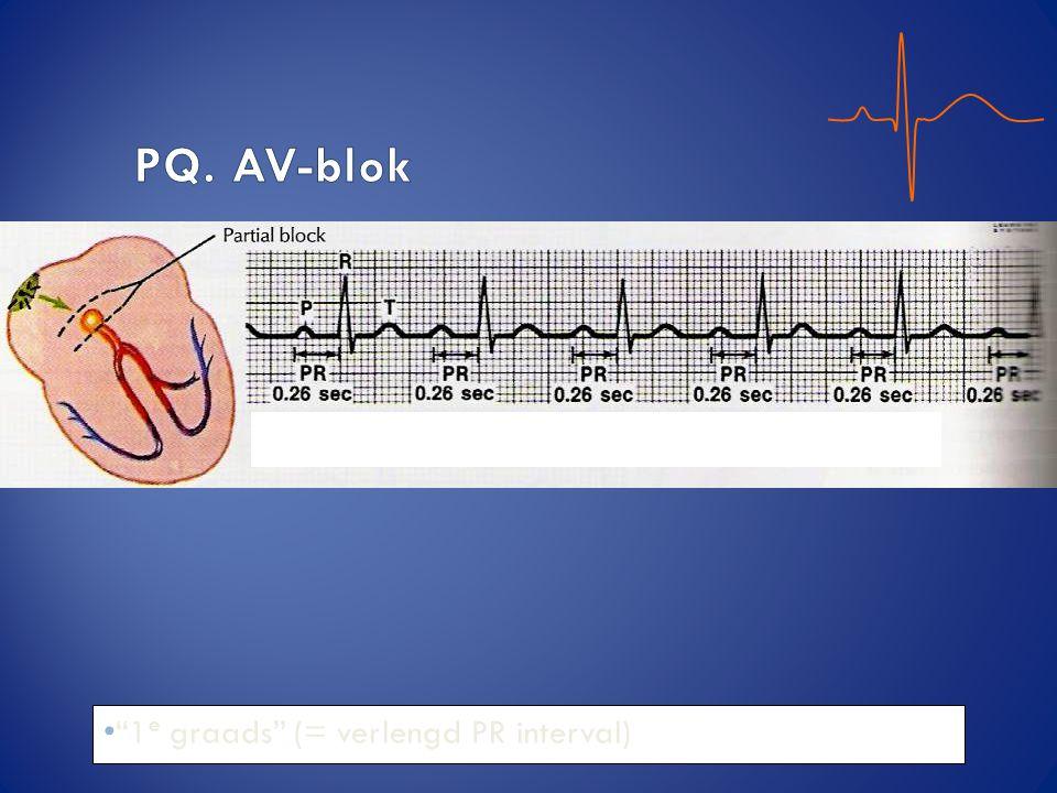 PQ. AV-blok 1e graads (= verlengd PR interval)