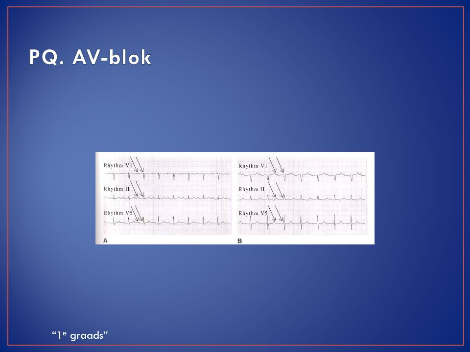 PQ. AV-blok 2e voorbeeld: vaste relatie tussen P en QRS, lange geleidingsduur.