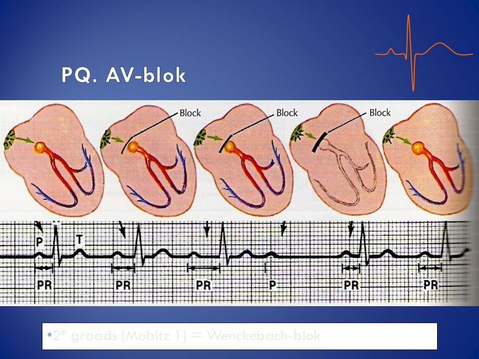 PQ. AV-blok 2e graads (Mobitz 1) = Wenckebach-blok