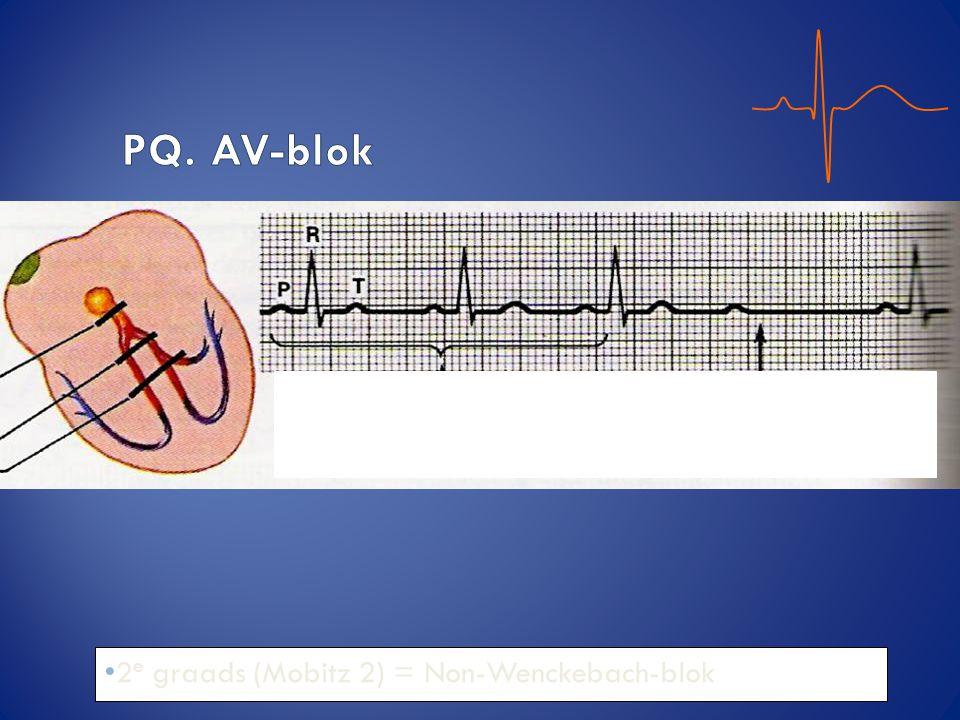 PQ. AV-blok 2e graads (Mobitz 2) = Non-Wenckebach-blok