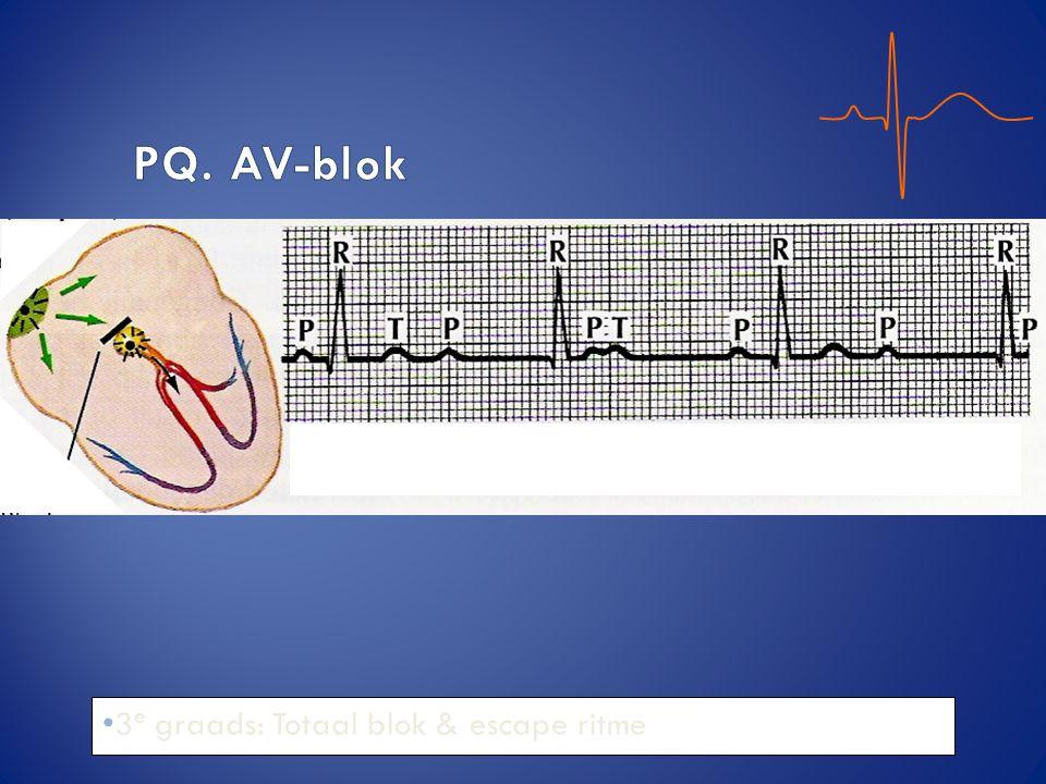 PQ. AV-blok 3e graads: Totaal blok & escape ritme