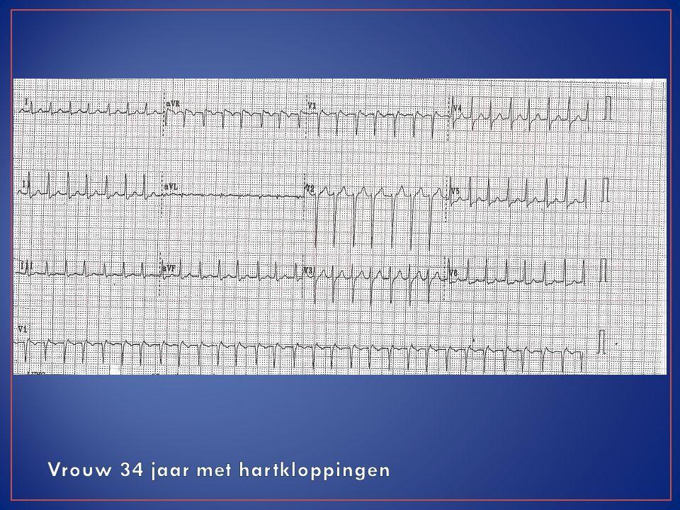 Vrouw 34 jaar met hartkloppingen