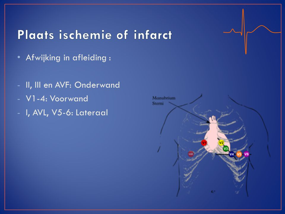Plaats ischemie of infarct
