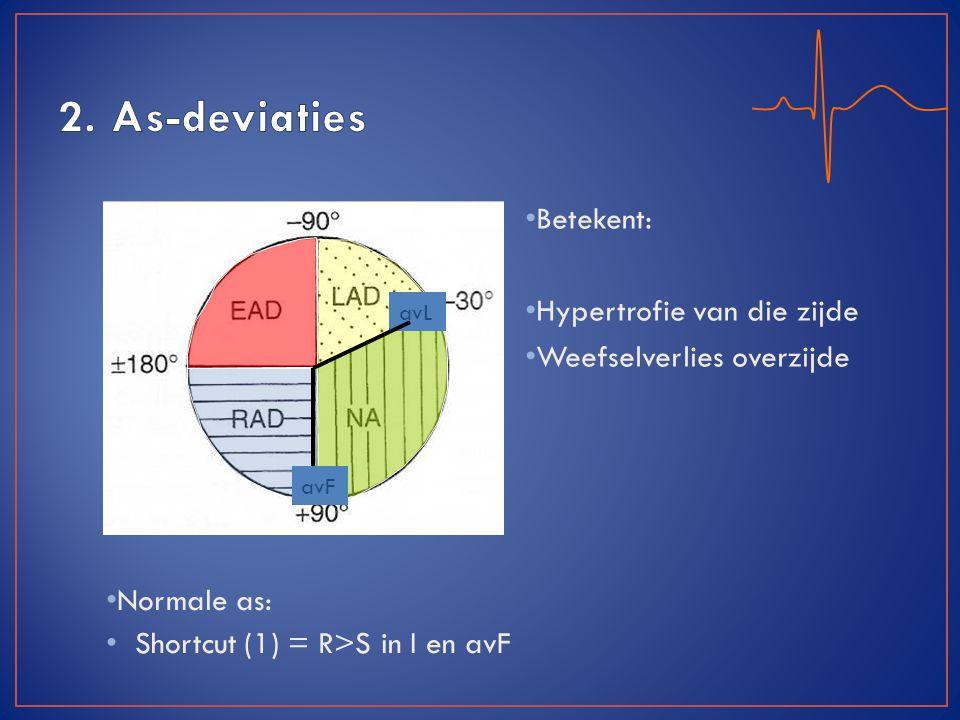 2. As-deviaties Betekent: Hypertrofie van die zijde