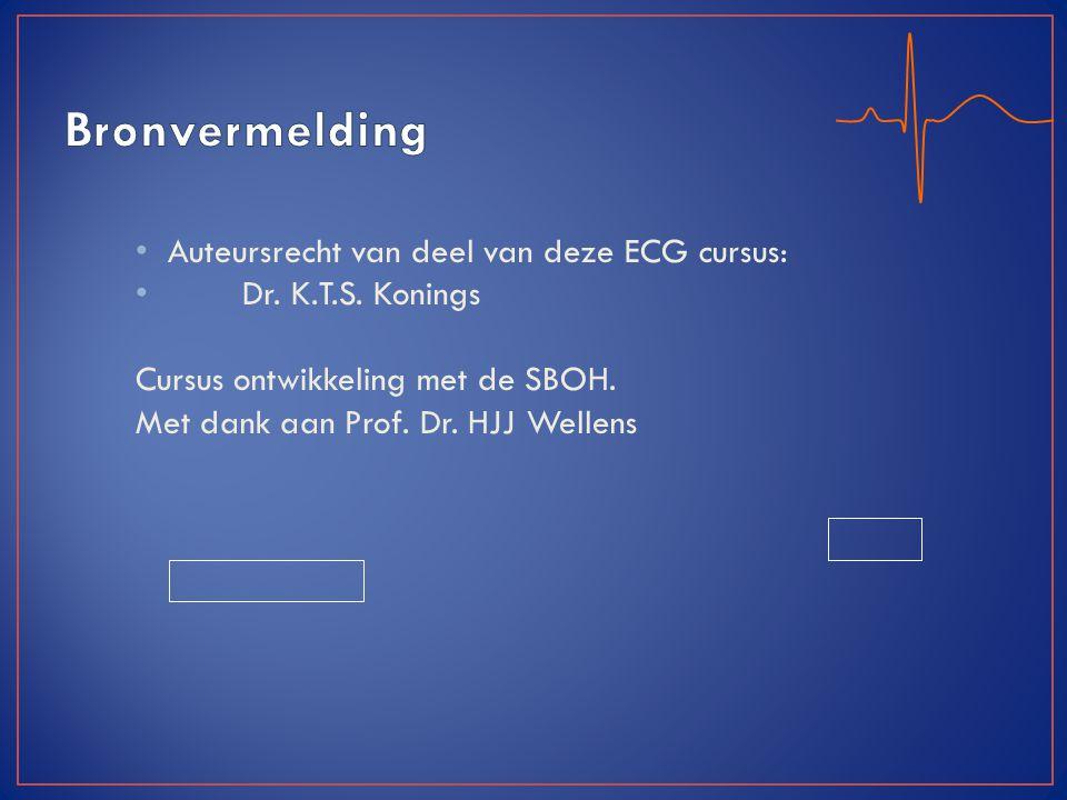 Bronvermelding Auteursrecht van deel van deze ECG cursus: